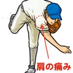 成長期と成人の野球肩の違いについてわかりやすく解説します!―名古屋の接骨院と言えばめいほく接骨院!