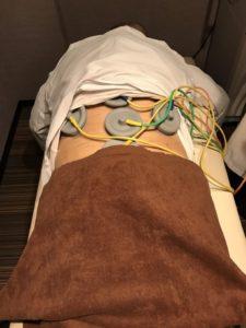 名古屋市のめいほく接骨院での電気治療の様子